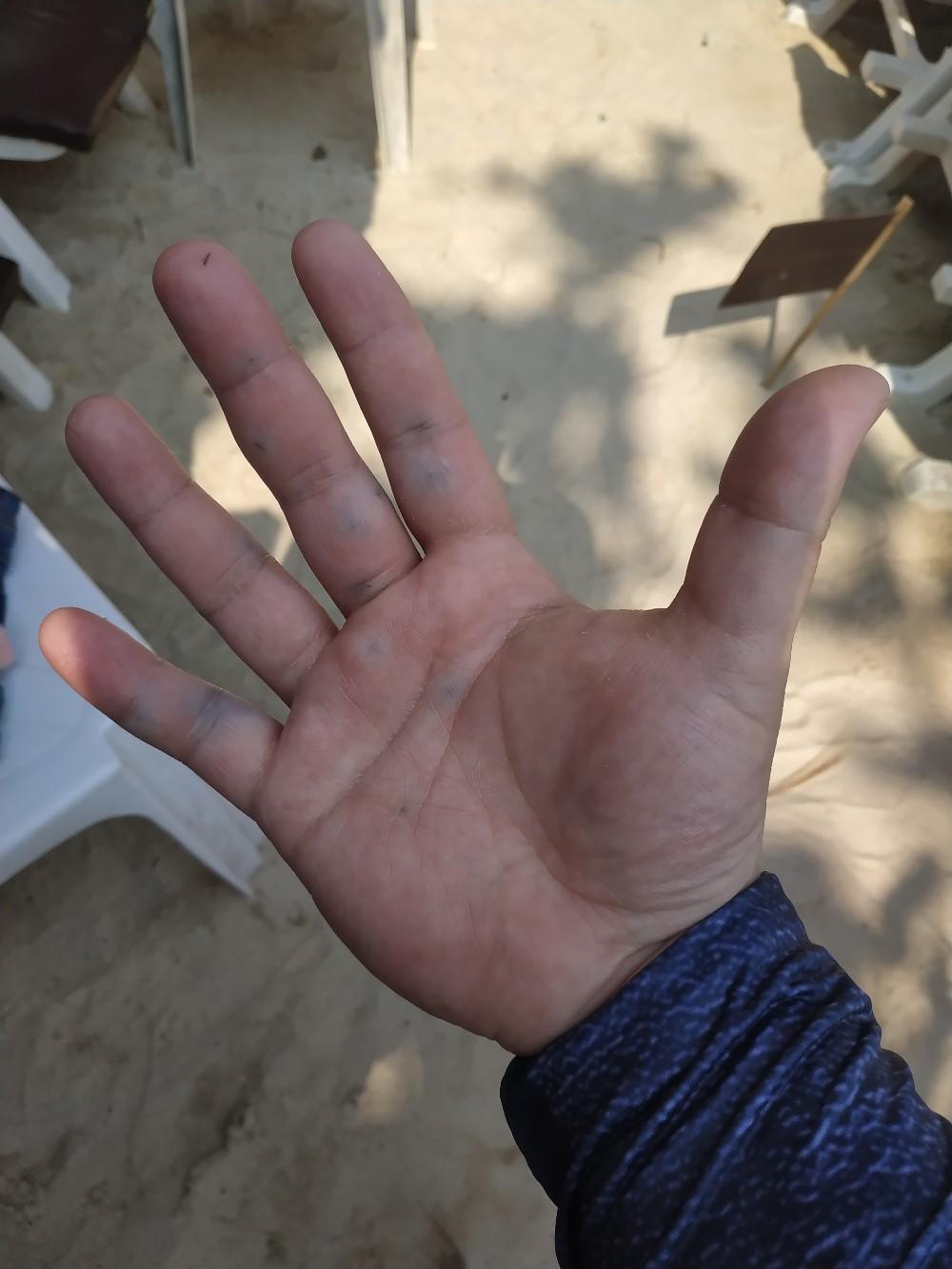 Рука после укола морского ежа